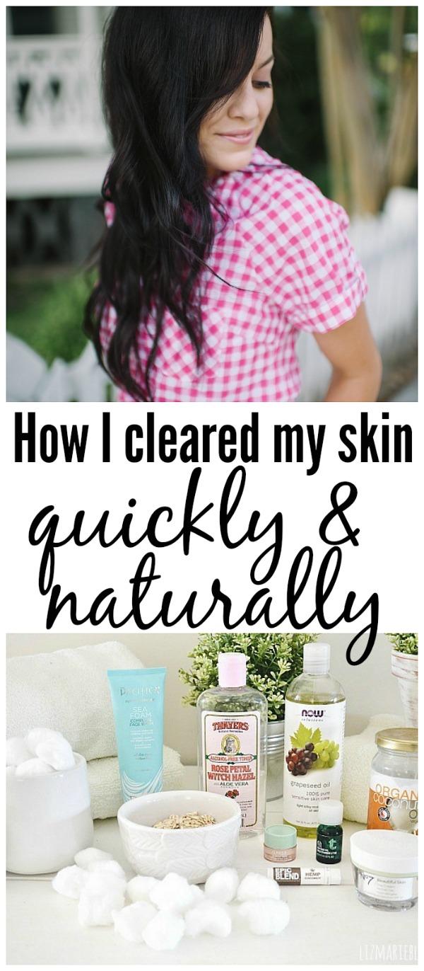 How I healed my skin the natural way!