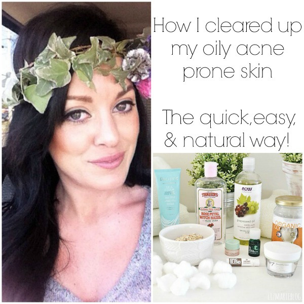 How to clear your skin naturally!! - lizmarieblog.com