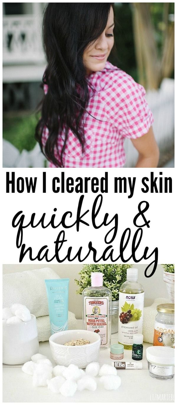 How I healed my skin - Natural skincare routine.